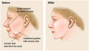 facelift-treatment
